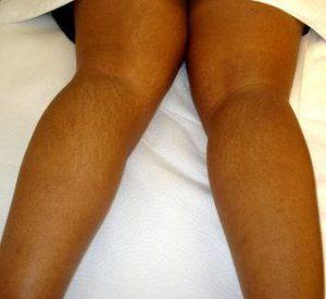 Smagliature dietro ginocchia